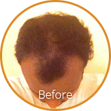 Before & After Forila All Natural Hair Building Fibers
