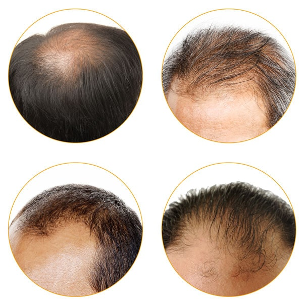 Types of hair loss - Forila Hair Building Fibers