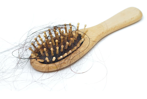 A Look at Hair Loss Solutions Part 1: Medical Treatments