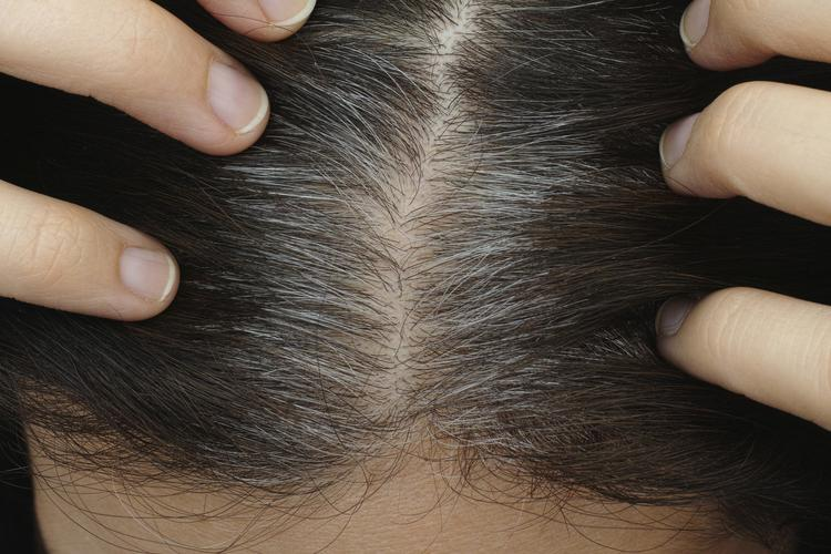 What Causes Gray Hair?